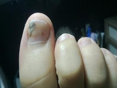 长沙灰指甲的病因及治疗